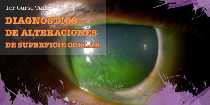 Diagnóstico de Alteraciones de Superficie Ocular