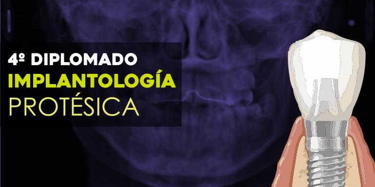 Implantología Protésica