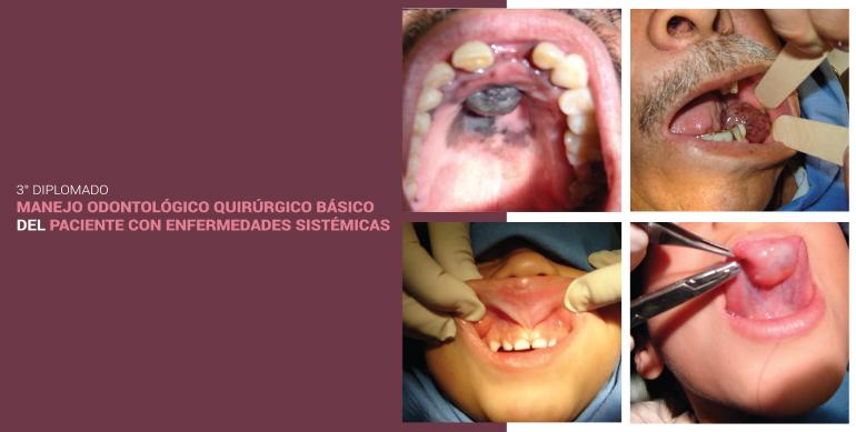 Manejo Odontológico Quirúrgico Básico del Paciente con Enfermedades Sistémicas