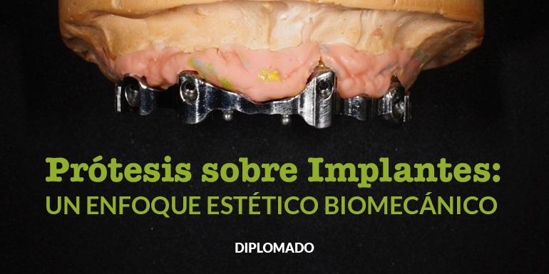 Prótesis sobre Implantes: Un Enfoque Estético y Biomecánico